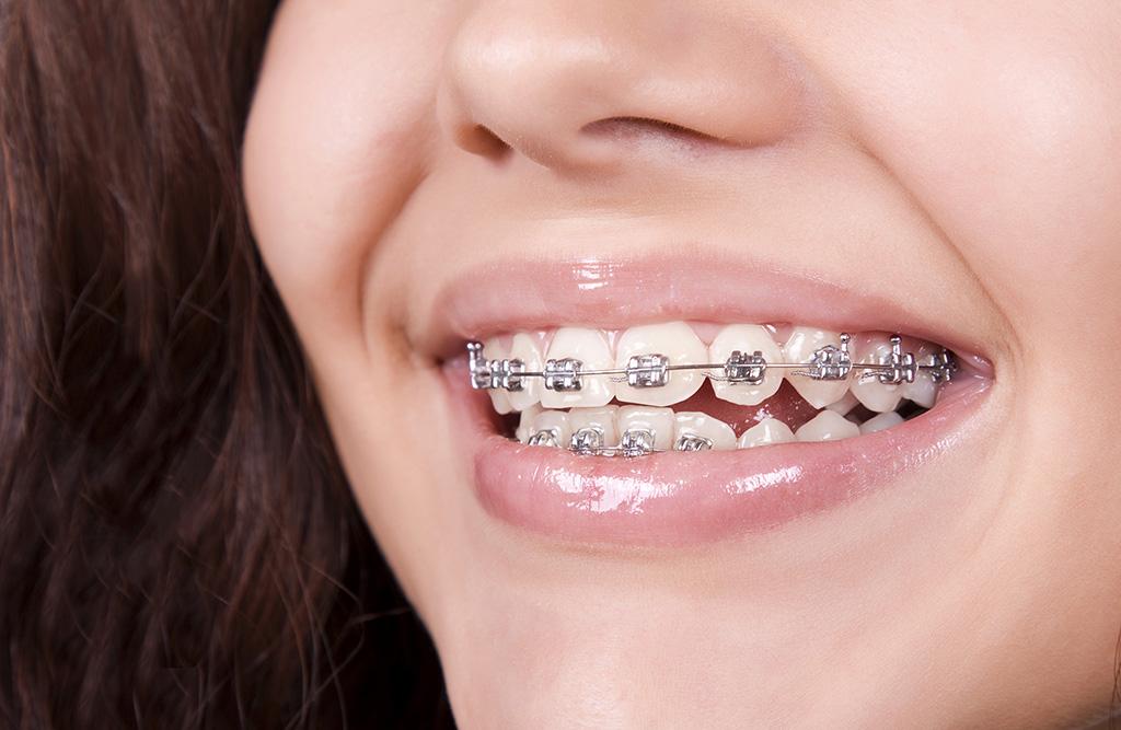 orthodontic-treatment-img