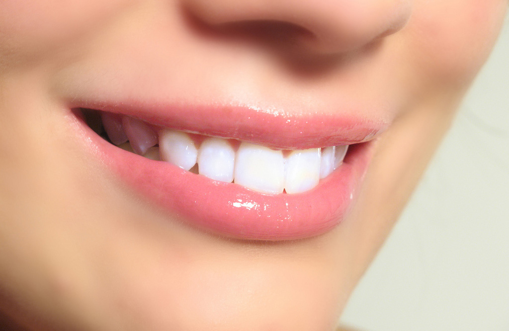 teeth-whitening-img